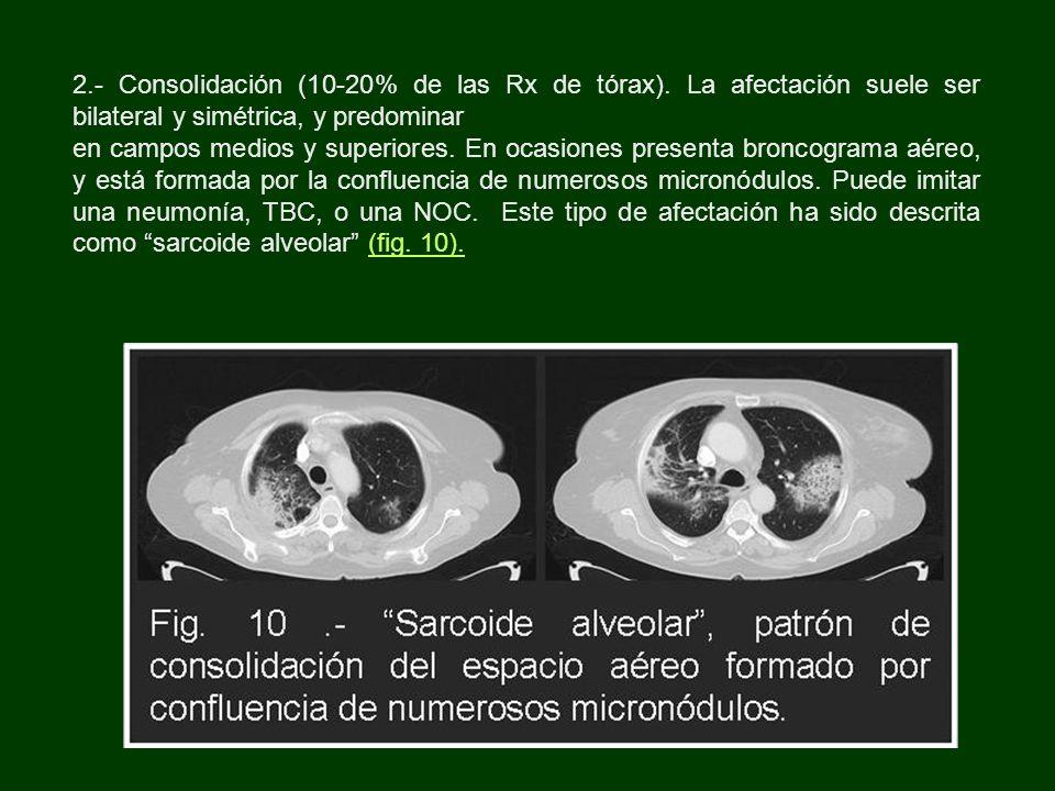 2. - Consolidación (10-20% de las Rx de tórax)