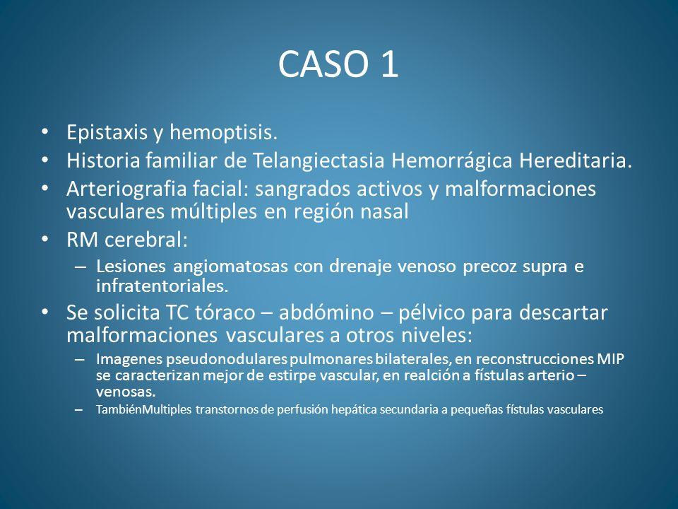 CASO 1 Epistaxis y hemoptisis.