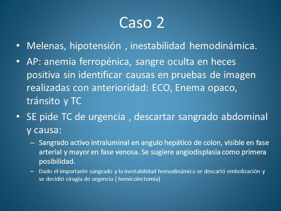 Caso 2 Melenas, hipotensión , inestabilidad hemodinámica.
