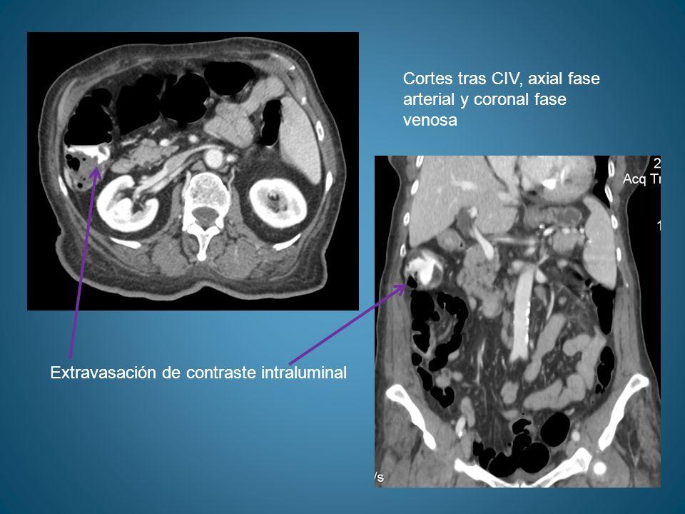 Cortes tras CIV, axial fase arterial y coronal fase venosa