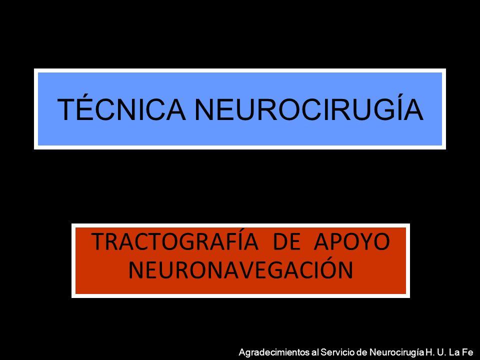 TRACTOGRAFÍA DE APOYO NEURONAVEGACIÓN