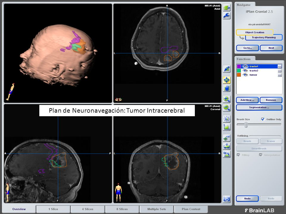 Plan de Neuronavegación: Tumor Intracerebral