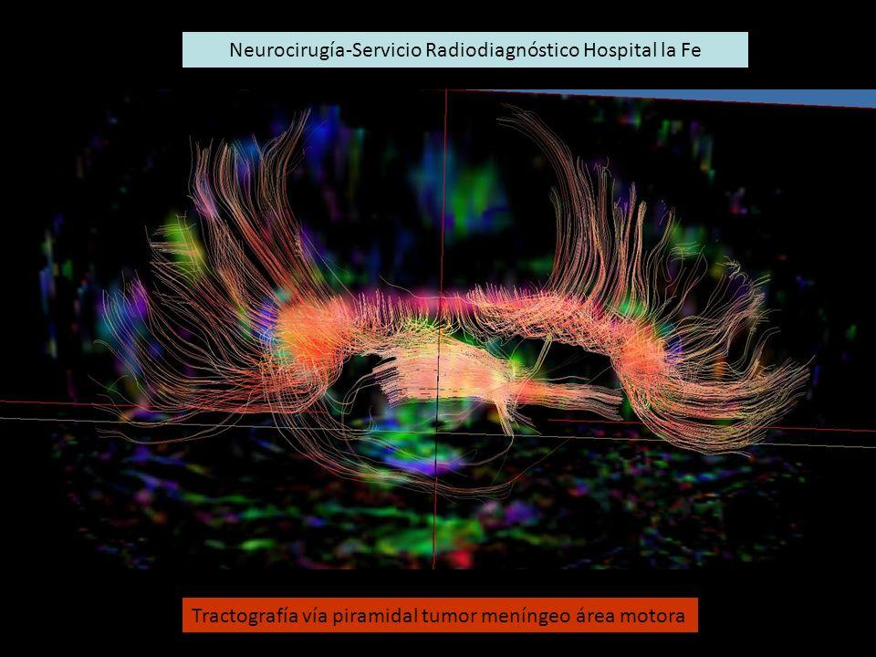 Neurocirugía-Servicio Radiodiagnóstico Hospital la Fe
