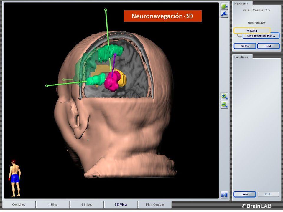 Neuronavegación ·3D 25