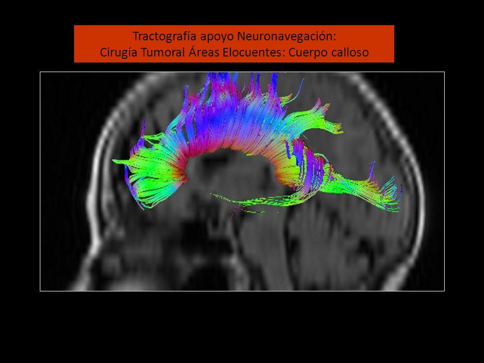 Tractografía apoyo Neuronavegación: