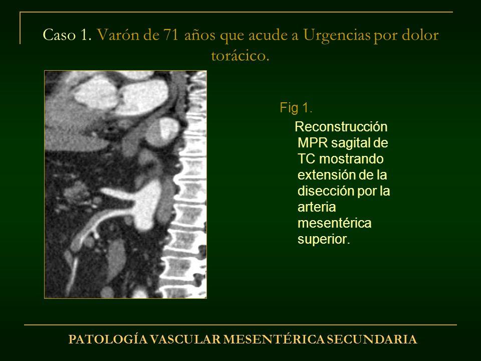 Caso 1. Varón de 71 años que acude a Urgencias por dolor torácico.