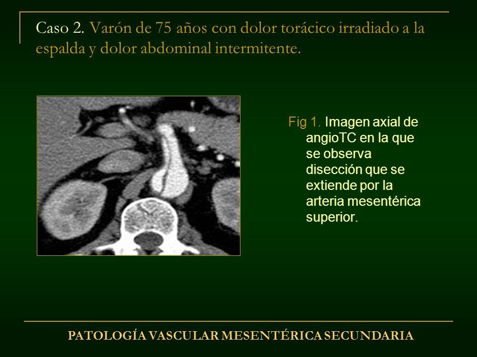 PATOLOGÍA VASCULAR MESENTÉRICA SECUNDARIA