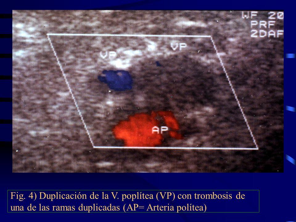 Fig. 4) Duplicación de la V
