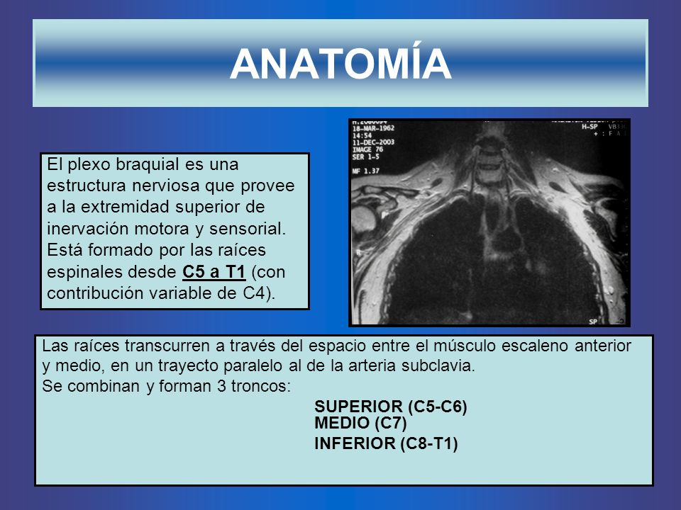 ANATOMÍA El plexo braquial es una estructura nerviosa que provee
