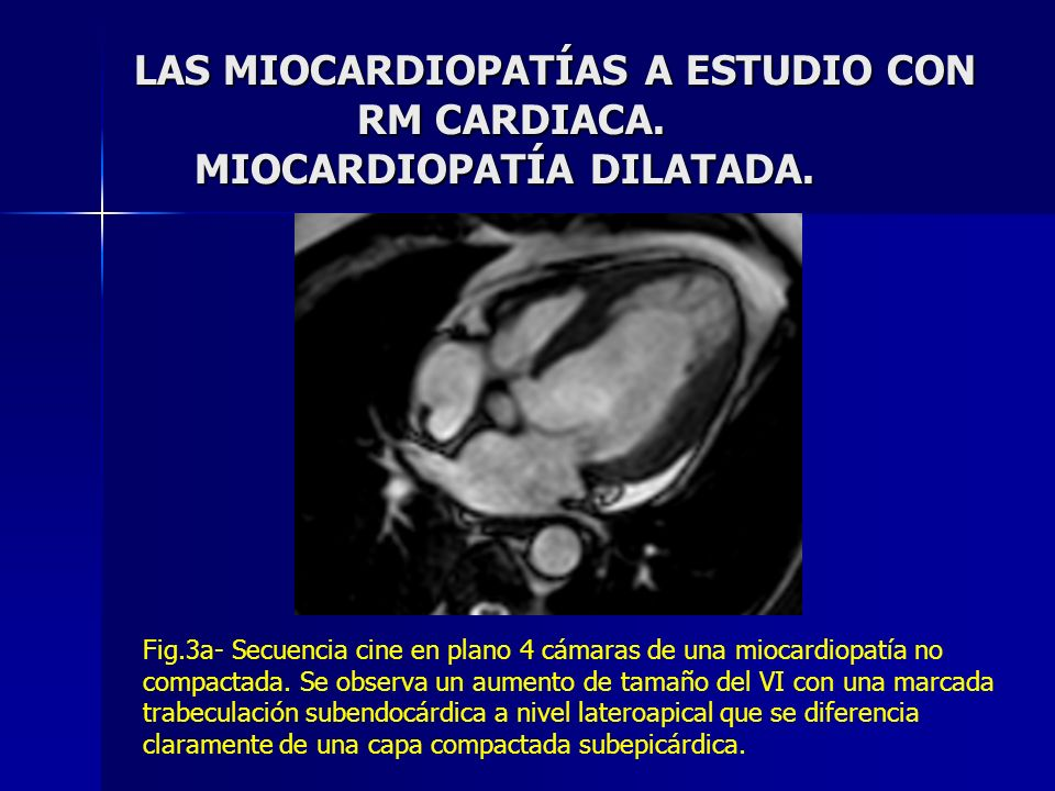 LAS MIOCARDIOPATÍAS A ESTUDIO CON RM CARDIACA. MIOCARDIOPATÍA DILATADA.