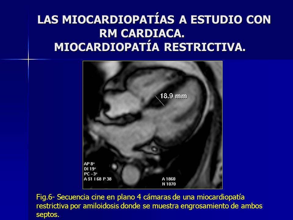LAS MIOCARDIOPATÍAS A ESTUDIO CON. RM CARDIACA