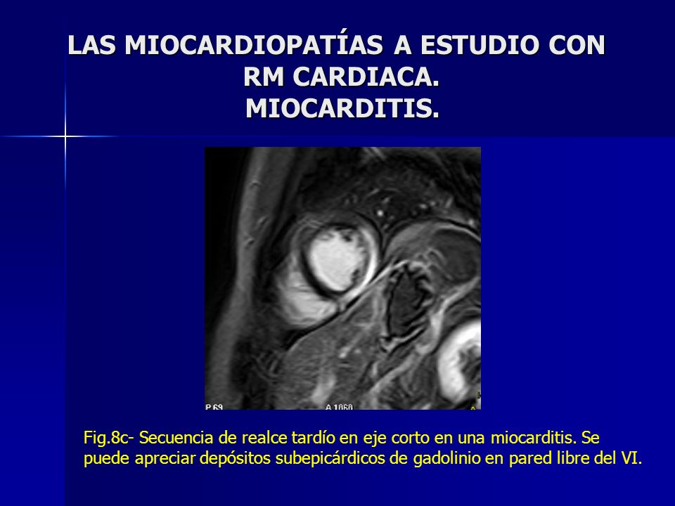 LAS MIOCARDIOPATÍAS A ESTUDIO CON RM CARDIACA. MIOCARDITIS.