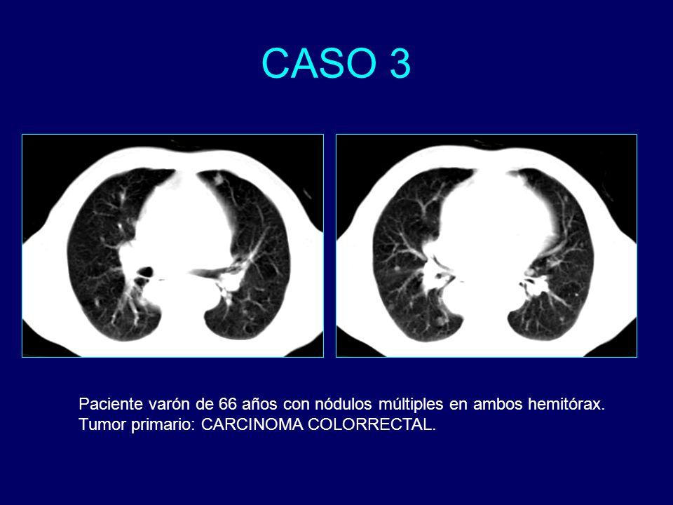 CASO 3Paciente varón de 66 años con nódulos múltiples en ambos hemitórax.
