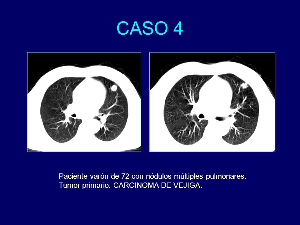 CASO 4 Paciente varón de 72 con nódulos múltiples pulmonares.