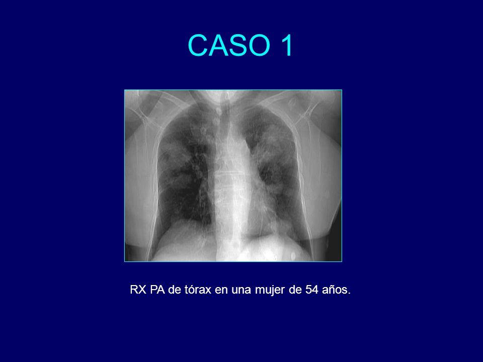 CASO 1 RX PA de tórax en una mujer de 54 años.