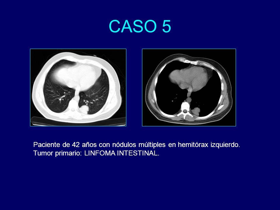 CASO 5 Paciente de 42 años con nódulos múltiples en hemitórax izquierdo.