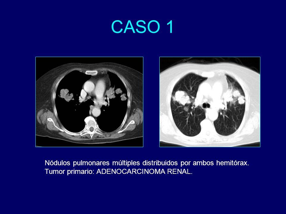 CASO 1 Nódulos pulmonares múltiples distribuidos por ambos hemitórax.
