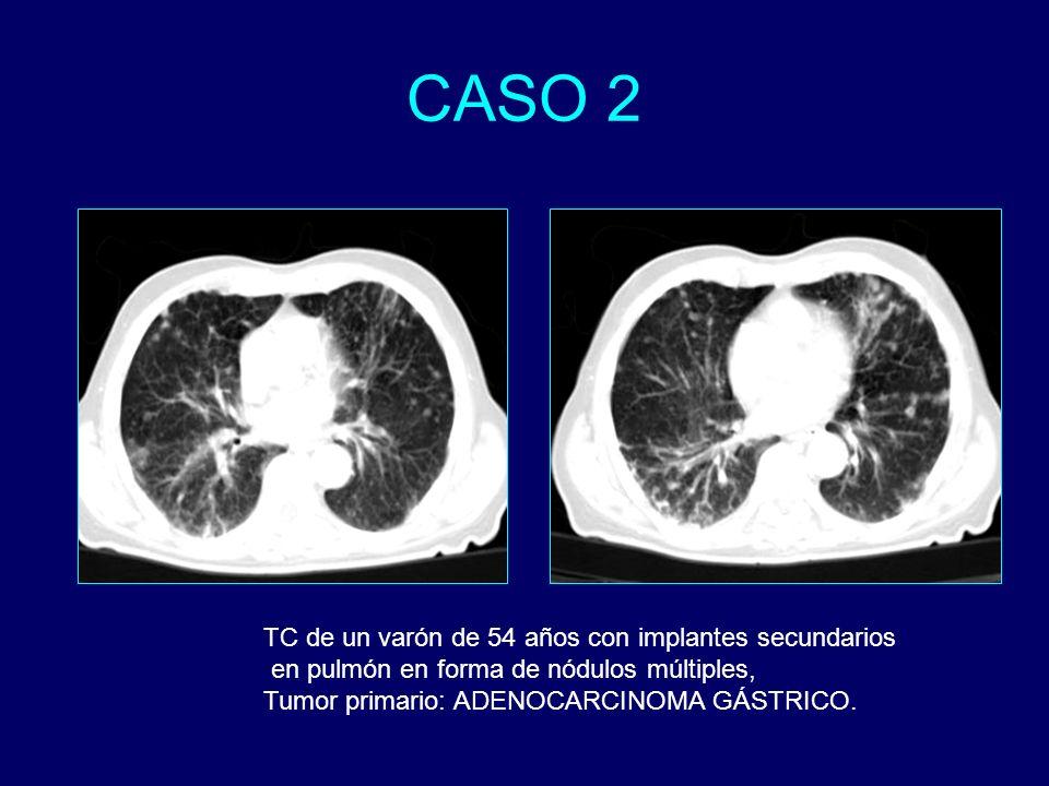 CASO 2 TC de un varón de 54 años con implantes secundarios