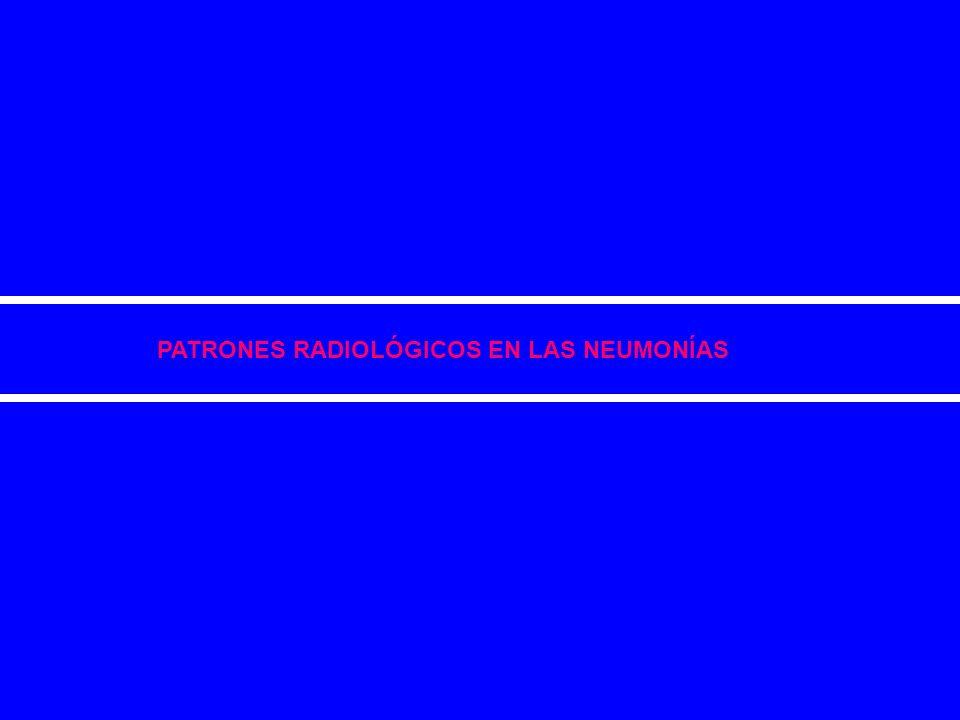 PATRONES RADIOLÓGICOS EN LAS NEUMONÍAS