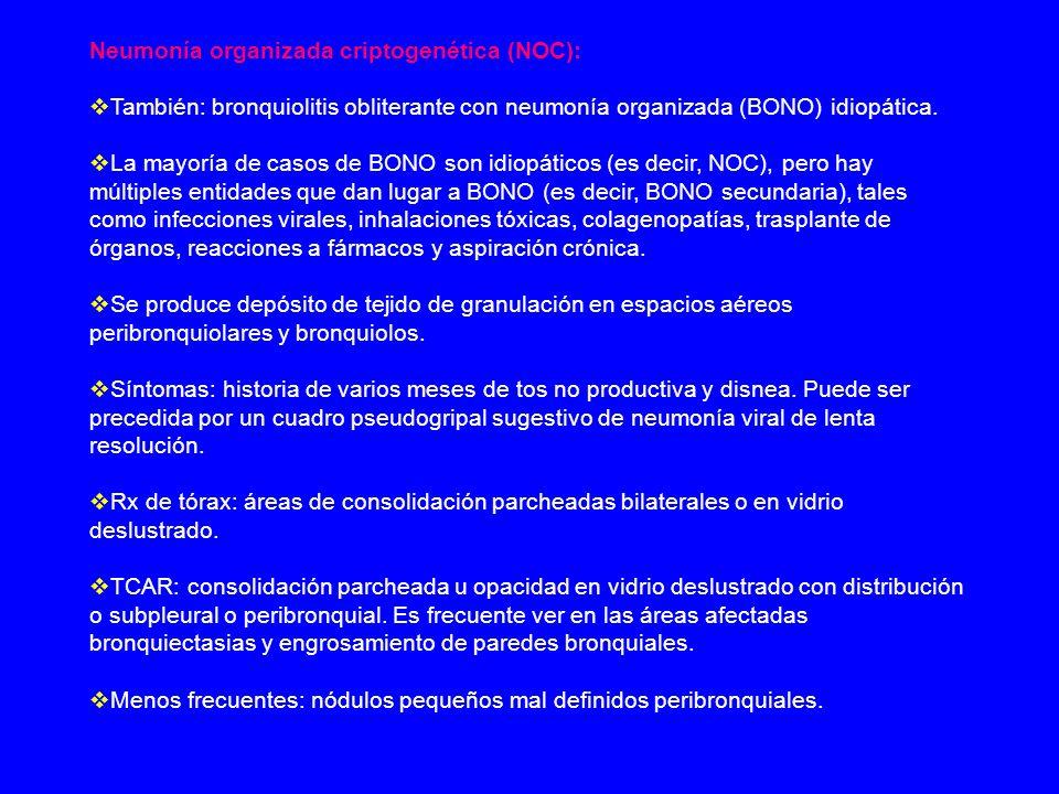 Neumonía organizada criptogenética (NOC):