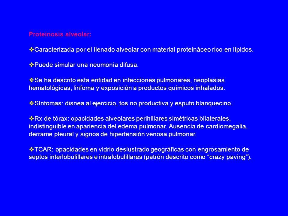 Proteinosis alveolar: