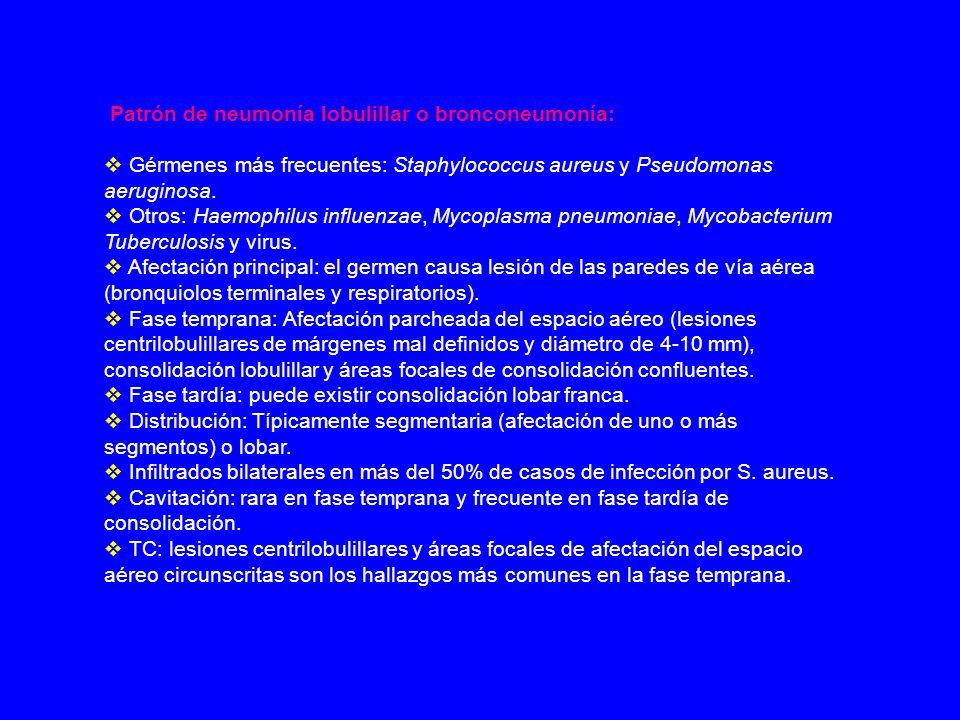 Patrón de neumonía lobulillar o bronconeumonía: