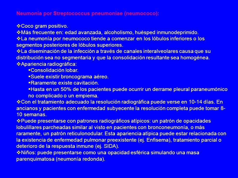 Neumonía por Streptococcus pneumoniae (neumococo):