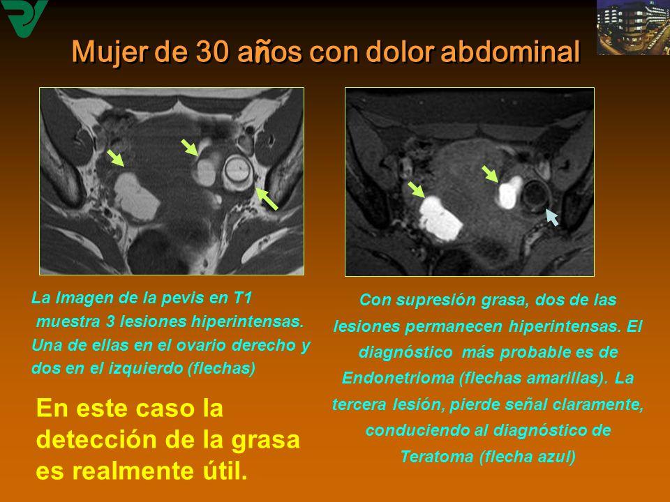 Mujer de 30 años con dolor abdominal