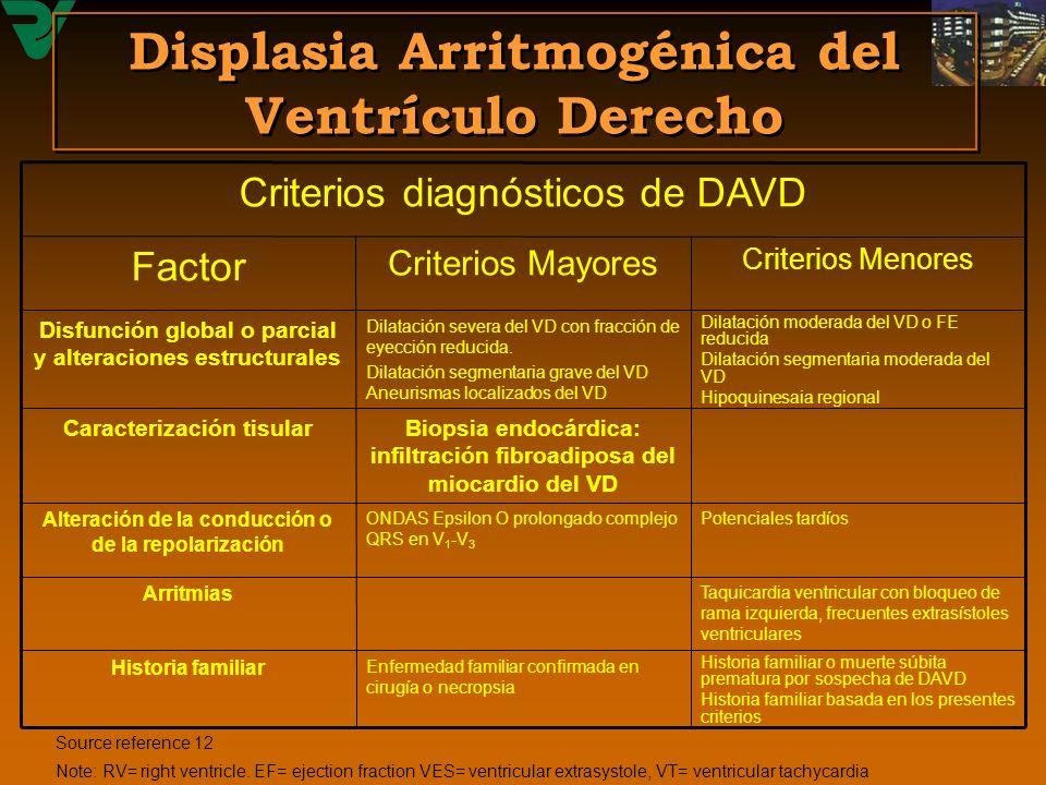 Displasia Arritmogénica del Ventrículo Derecho