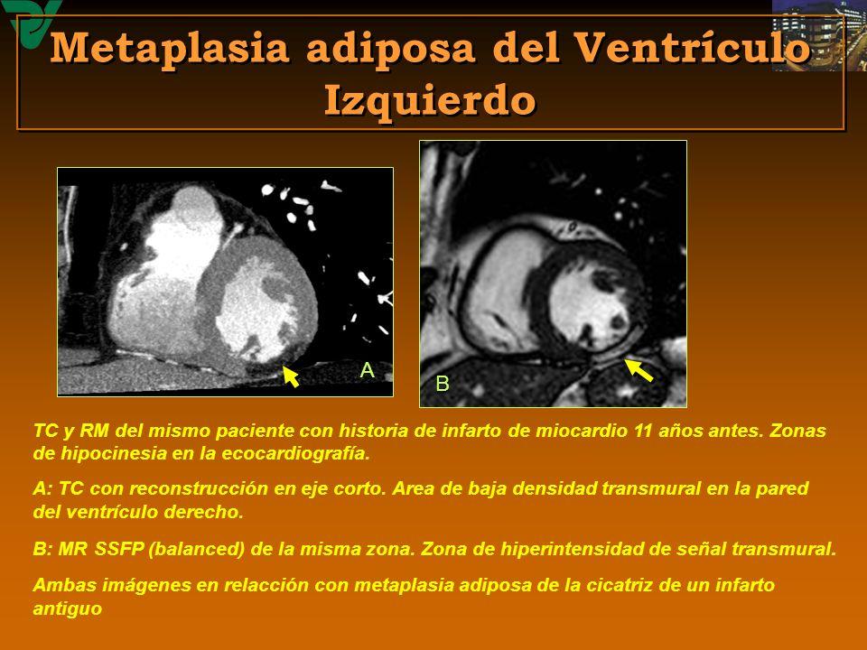 Metaplasia adiposa del Ventrículo Izquierdo