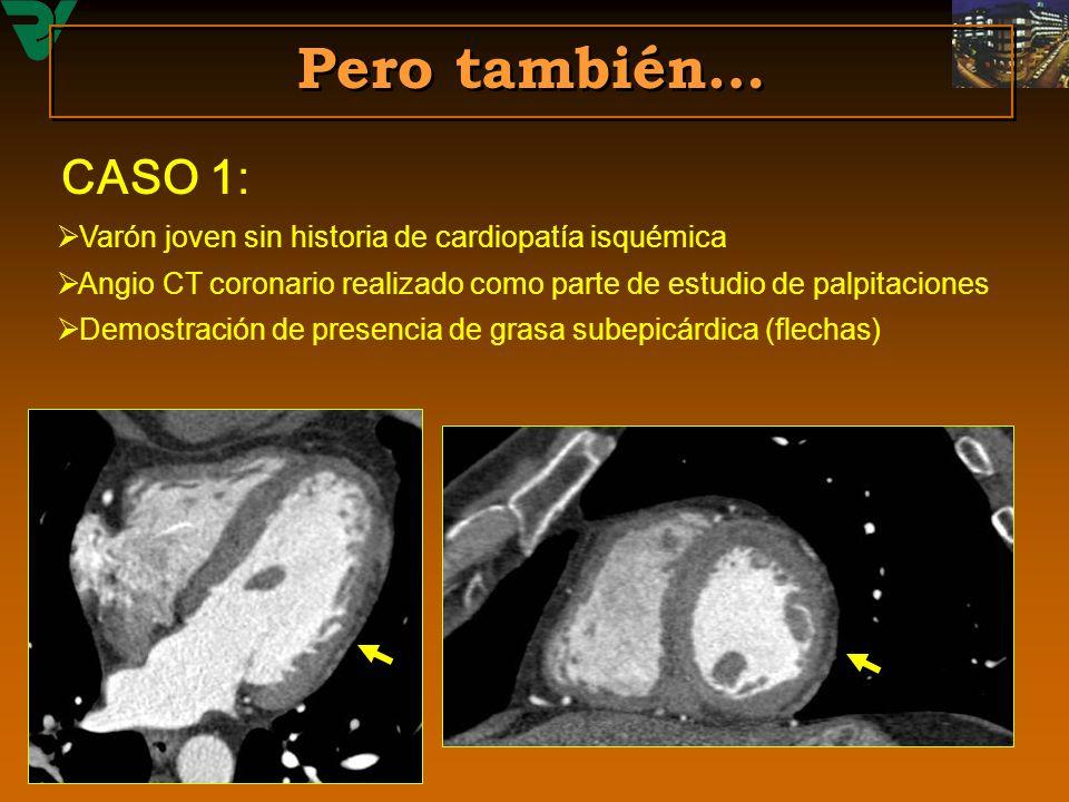 Pero también… CASO 1: Varón joven sin historia de cardiopatía isquémica. Angio CT coronario realizado como parte de estudio de palpitaciones.
