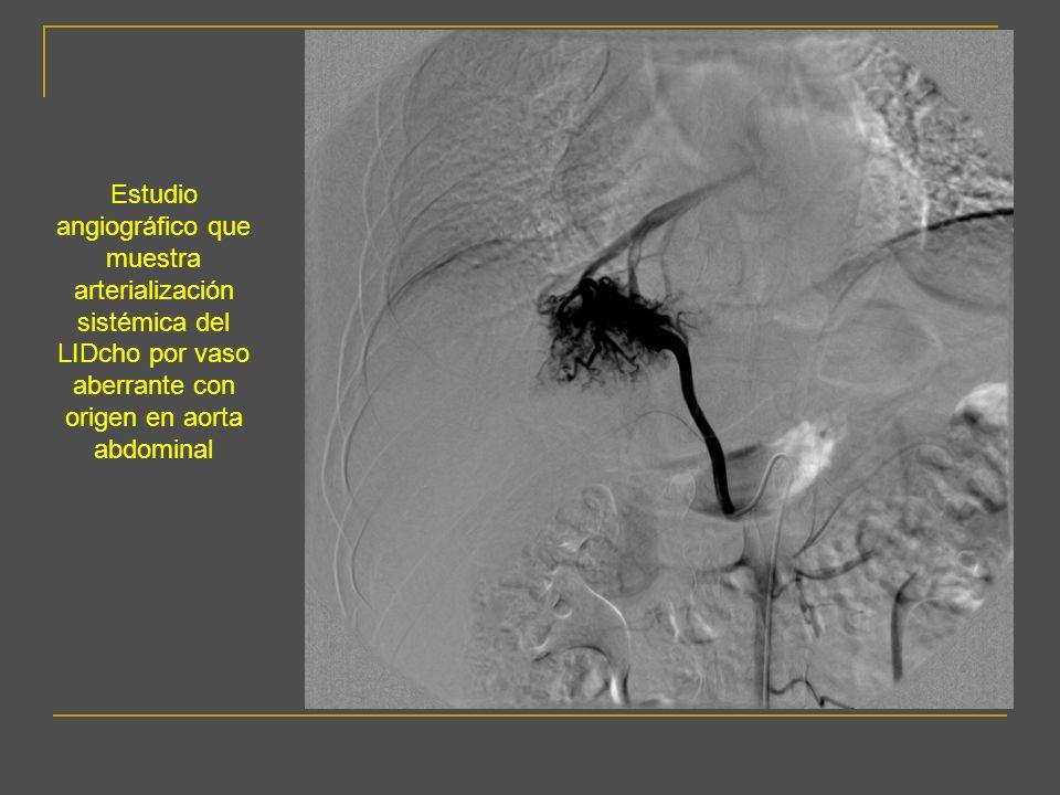 Estudio angiográfico que muestra arterialización sistémica del LIDcho por vaso aberrante con origen en aorta abdominal