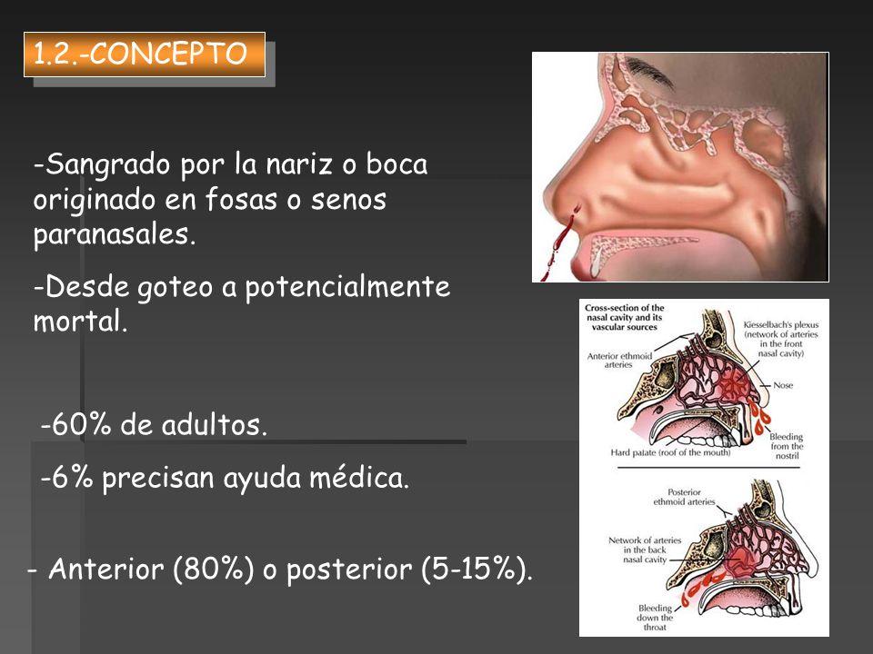 1.2.-CONCEPTOSangrado por la nariz o boca originado en fosas o senos paranasales. Desde goteo a potencialmente mortal.