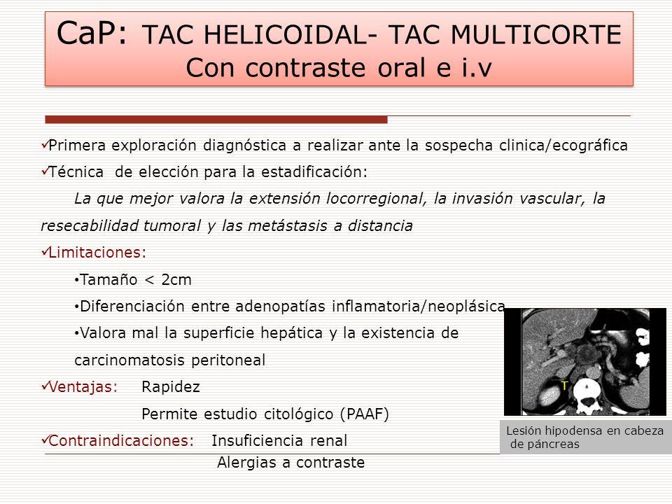 CaP: TAC HELICOIDAL- TAC MULTICORTE Con contraste oral e i.v