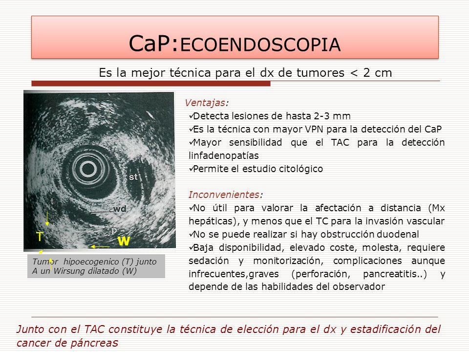 CaP:ECOENDOSCOPIA Es la mejor técnica para el dx de tumores < 2 cm