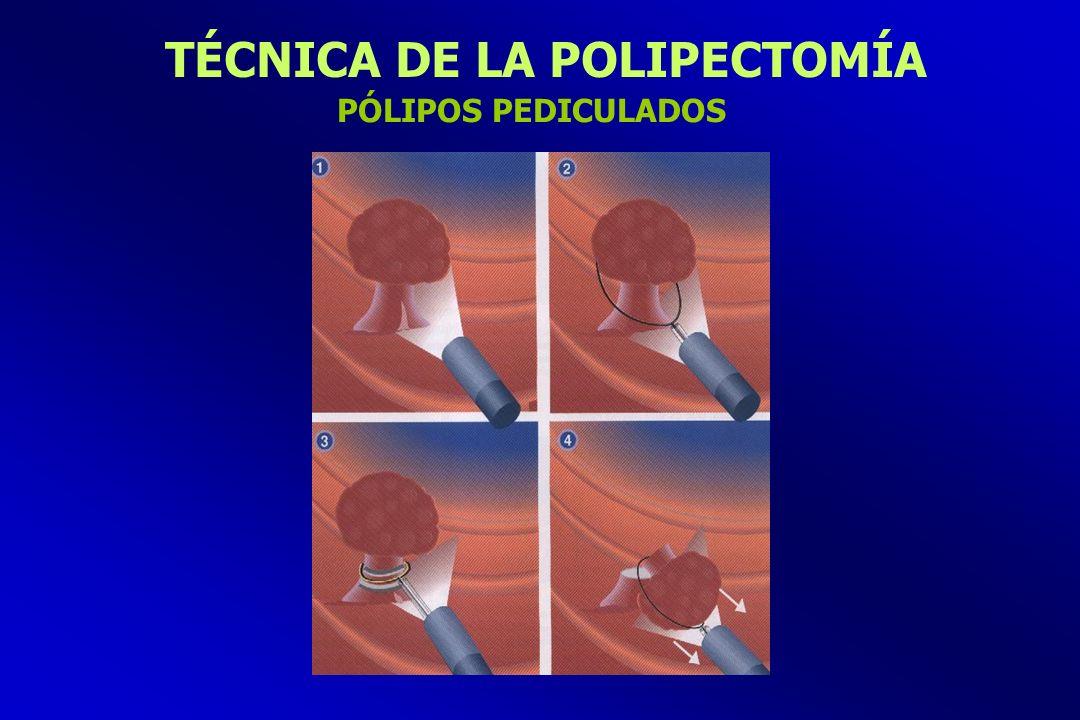 TÉCNICA DE LA POLIPECTOMÍA