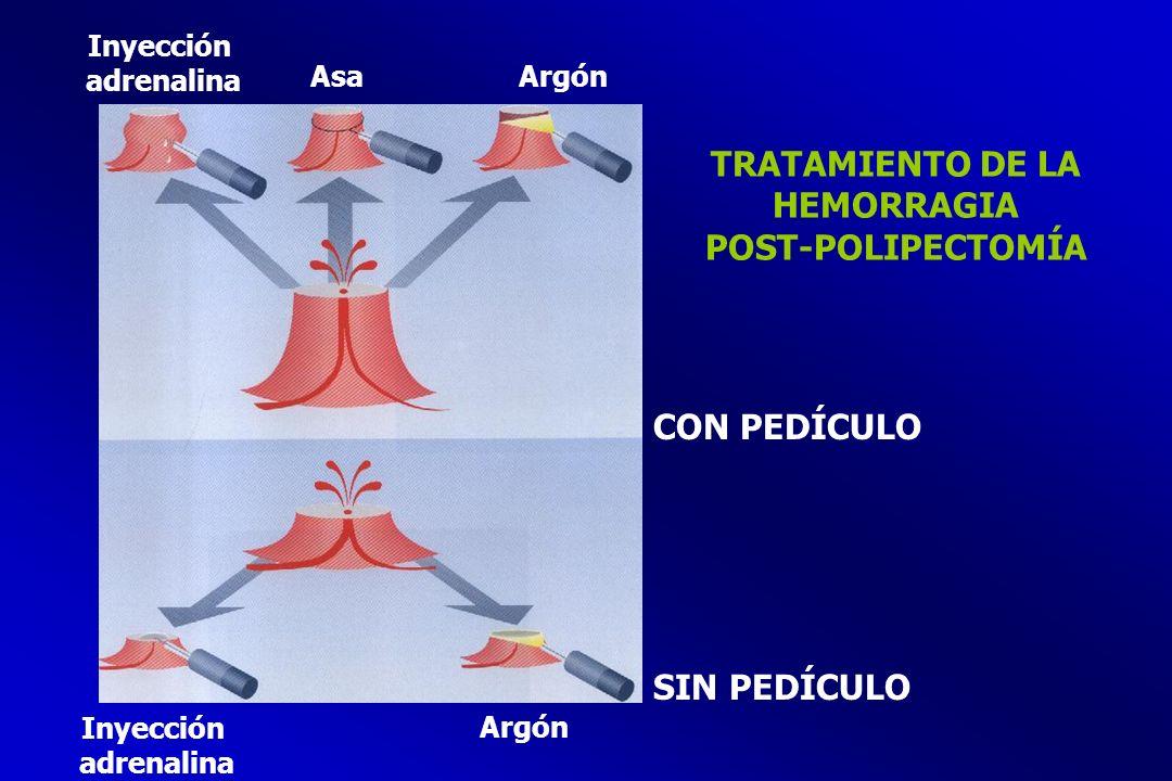 TRATAMIENTO DE LA HEMORRAGIA POST-POLIPECTOMÍA