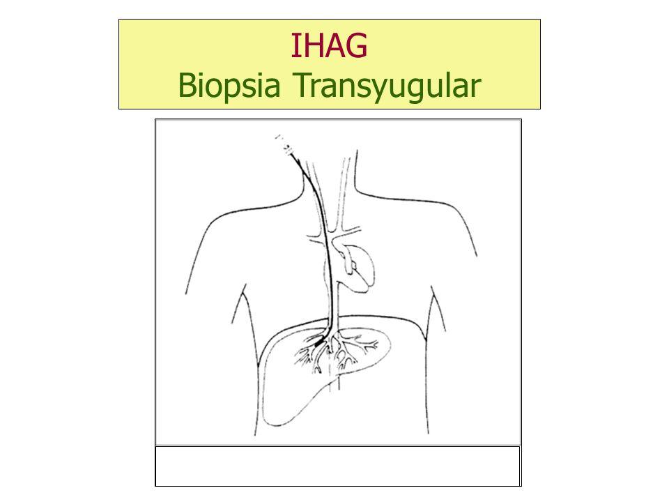 IHAG Biopsia Transyugular