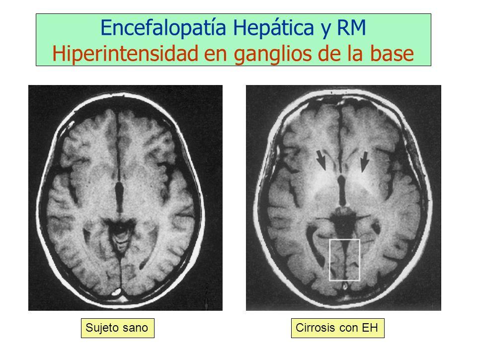 Encefalopatía Hepática y RM Hiperintensidad en ganglios de la base