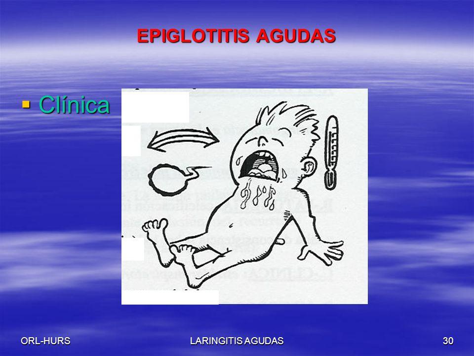 EPIGLOTITIS AGUDAS Clínica ORL-HURS LARINGITIS AGUDAS