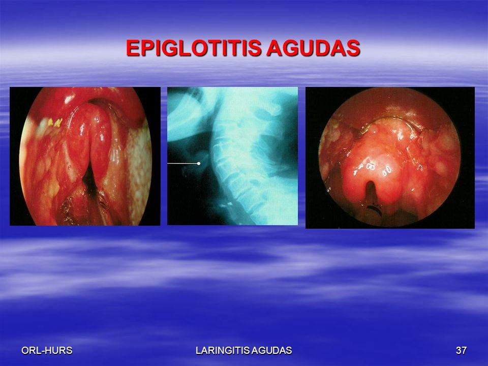 EPIGLOTITIS AGUDAS ORL-HURS LARINGITIS AGUDAS