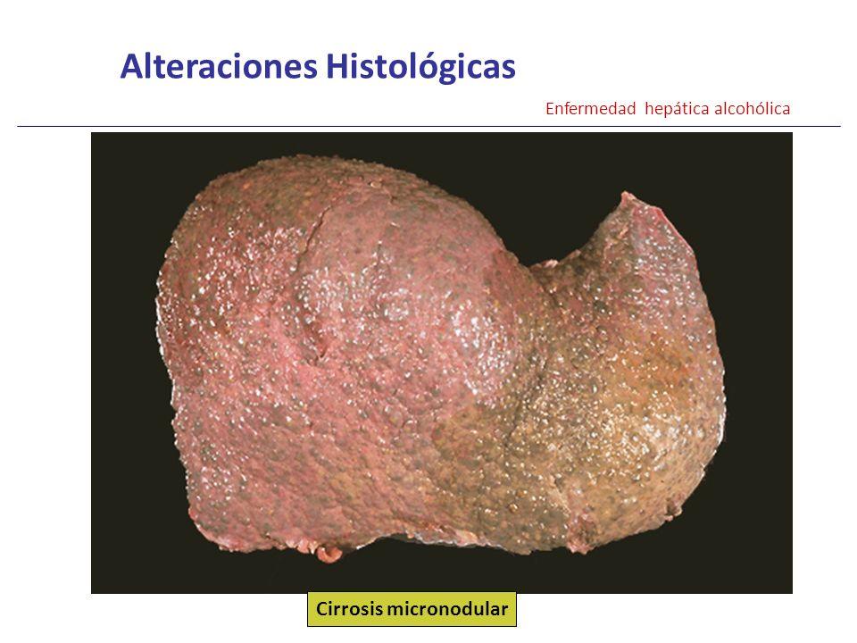 Alteraciones Histológicas