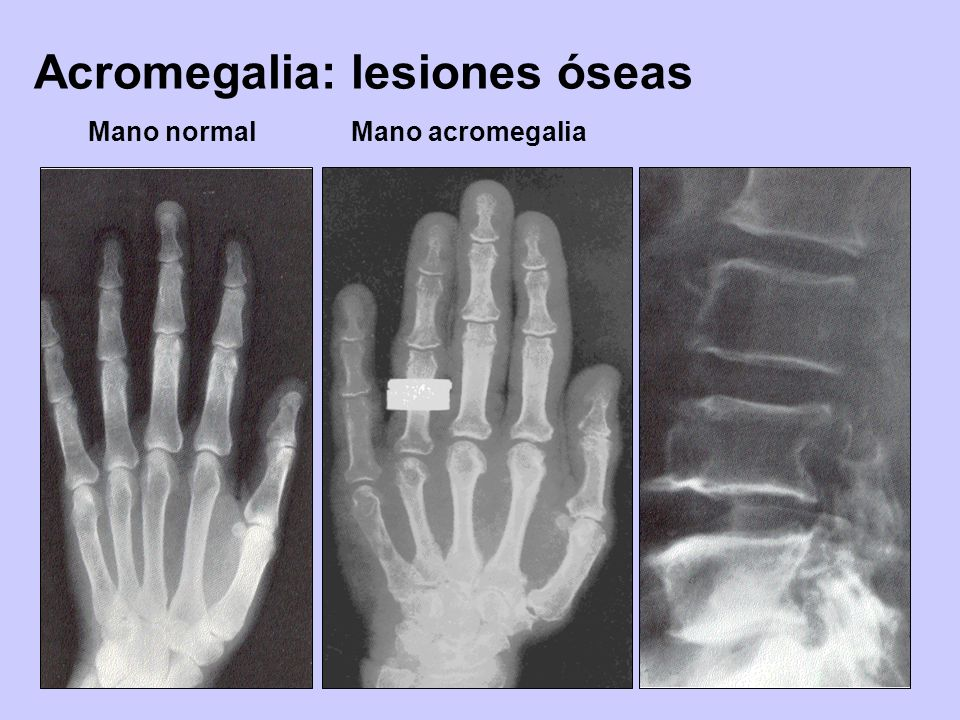 Acromegalia: lesiones óseas