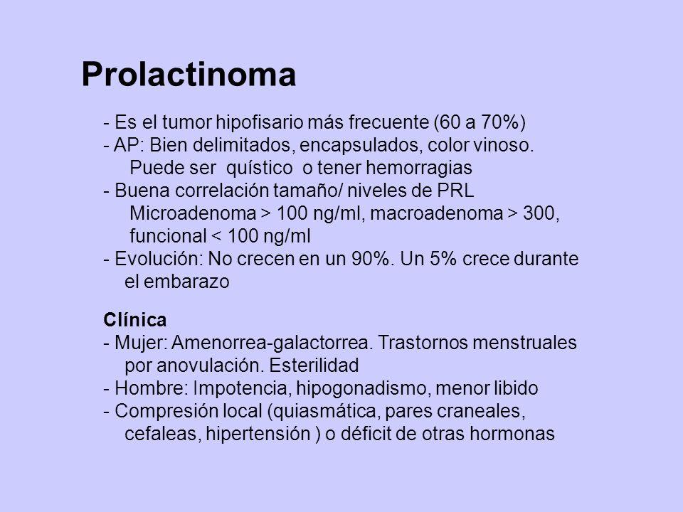 Prolactinoma - Es el tumor hipofisario más frecuente (60 a 70%)