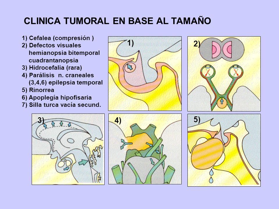 CLINICA TUMORAL EN BASE AL TAMAÑO