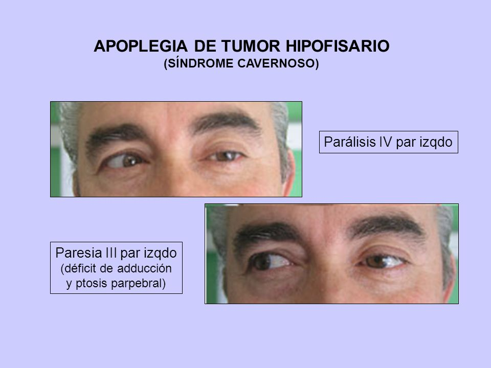 APOPLEGIA DE TUMOR HIPOFISARIO