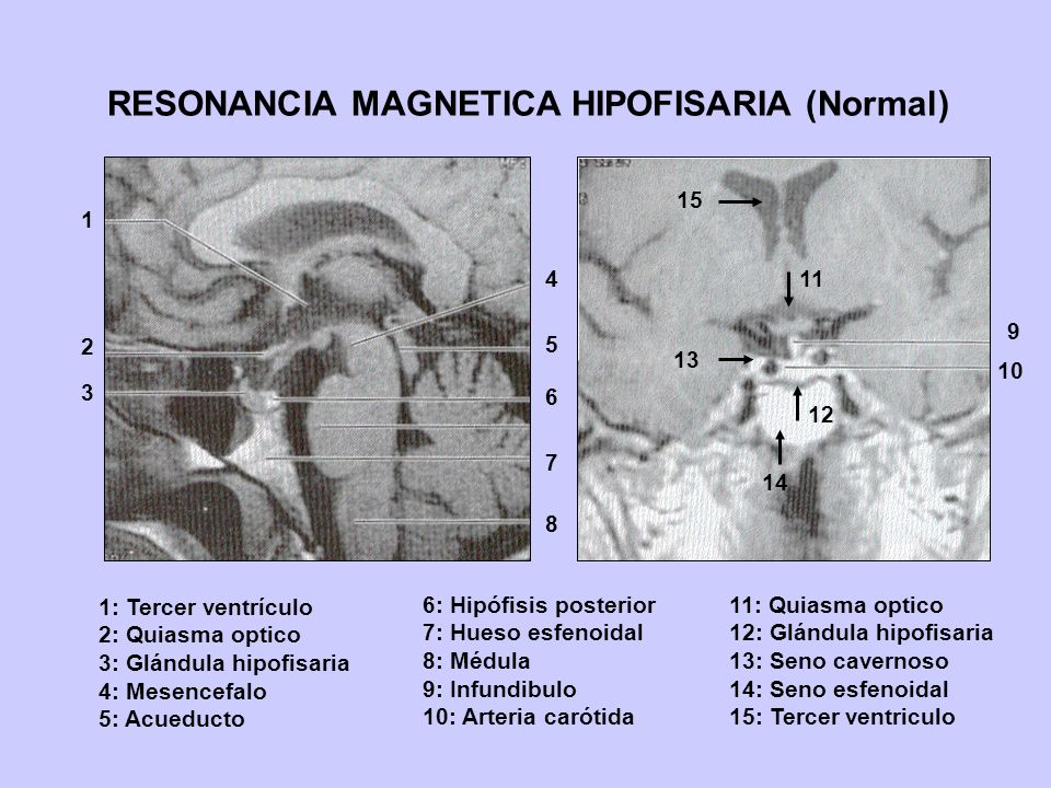 RESONANCIA MAGNETICA HIPOFISARIA (Normal)