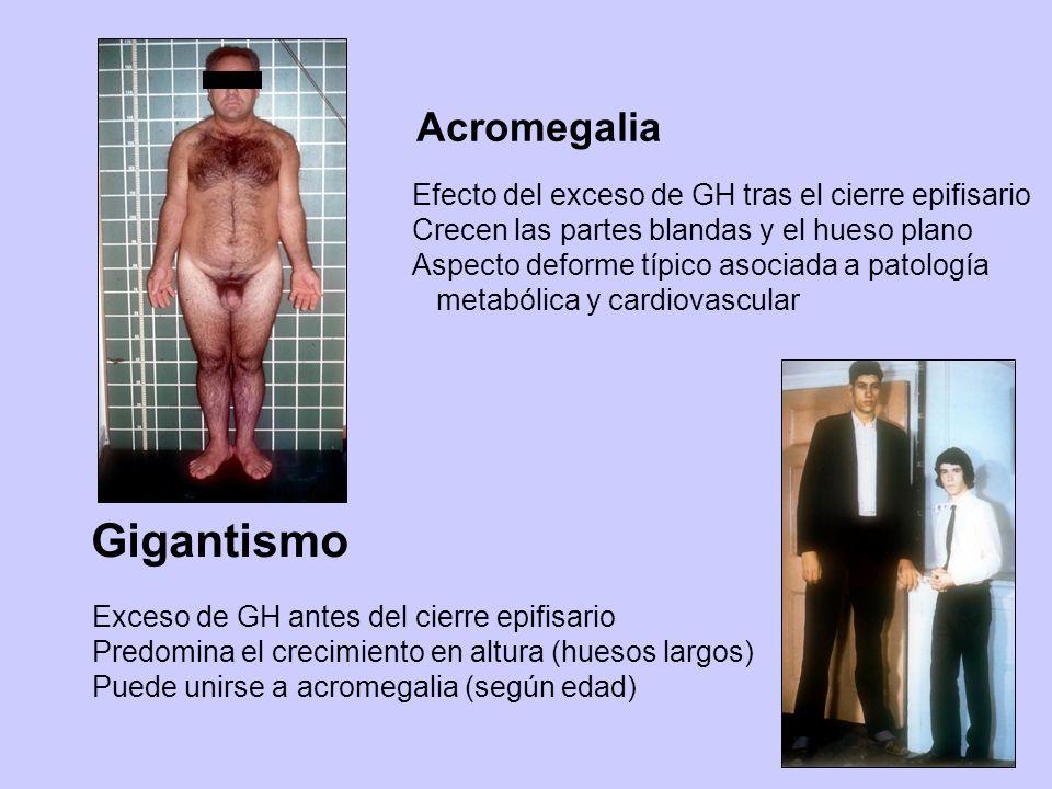 Gigantismo Acromegalia