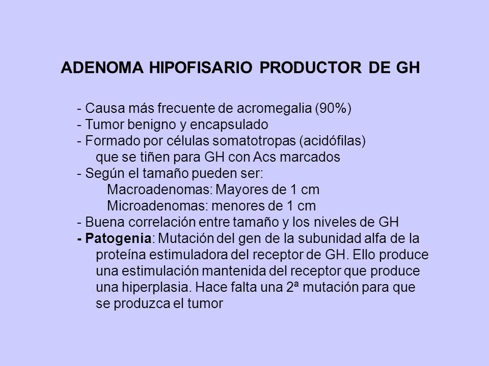 ADENOMA HIPOFISARIO PRODUCTOR DE GH