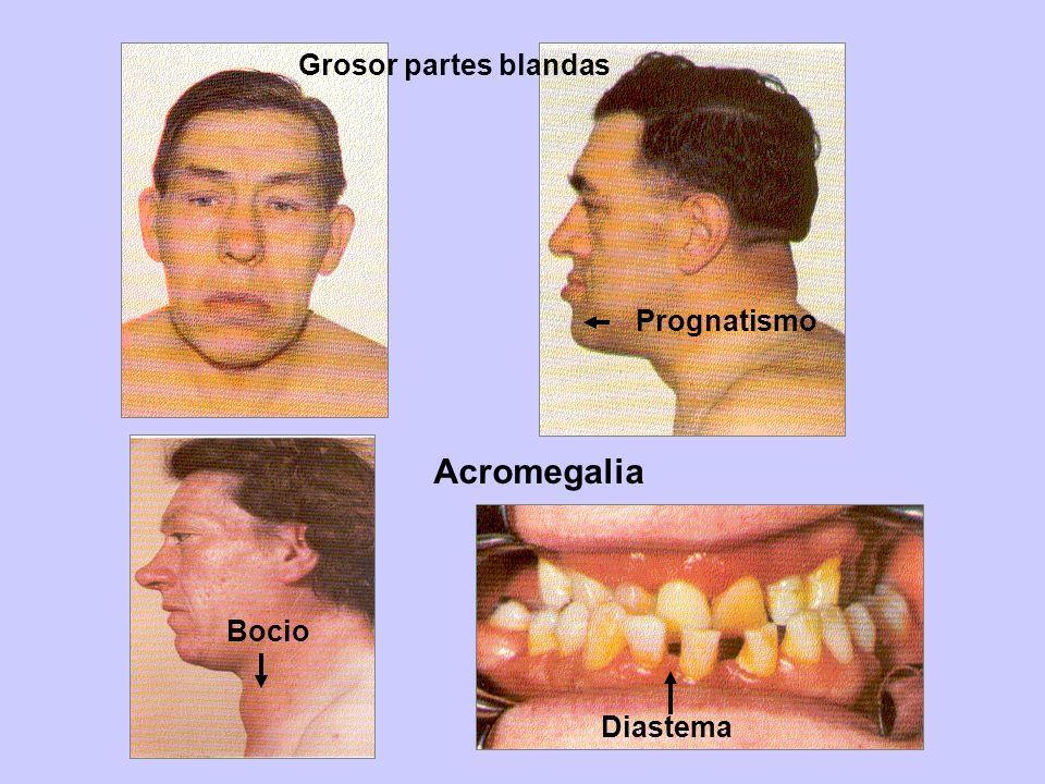 Grosor partes blandas Prognatismo Acromegalia Bocio Diastema